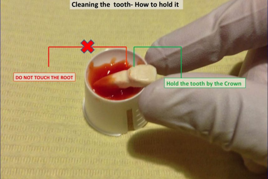 cleaning the tooth