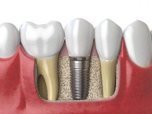 dental implant scaled 1