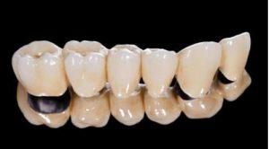 dentures crown bridge pfm zirconia 500x500 1