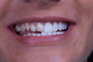 Onsite 2 dental veneers