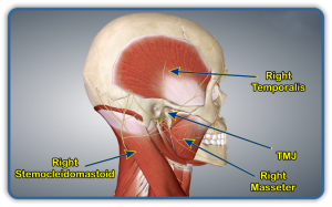 tmj right temporalis and masseter coon rapids chiropractic