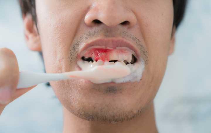 Bleeding-gums-while-brushing-teeth
