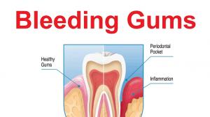 Medicine for bleeding gum 1