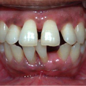Midline diastema due to pathologic migration of teeth Q320