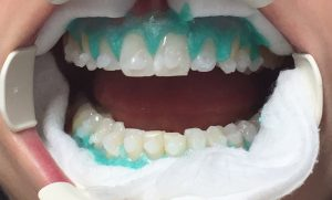 Whiteningprocedure