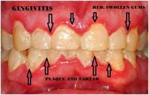 gingivitis 300x192 1