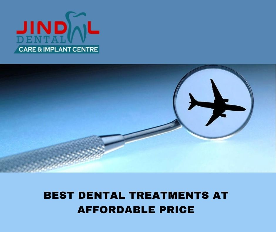 Best dental treatments at affordable pricet 1