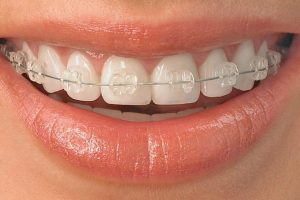 clearbraces 300x200 1