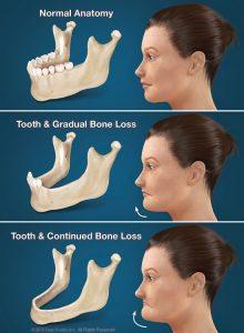 denture anatomy 220x300 1